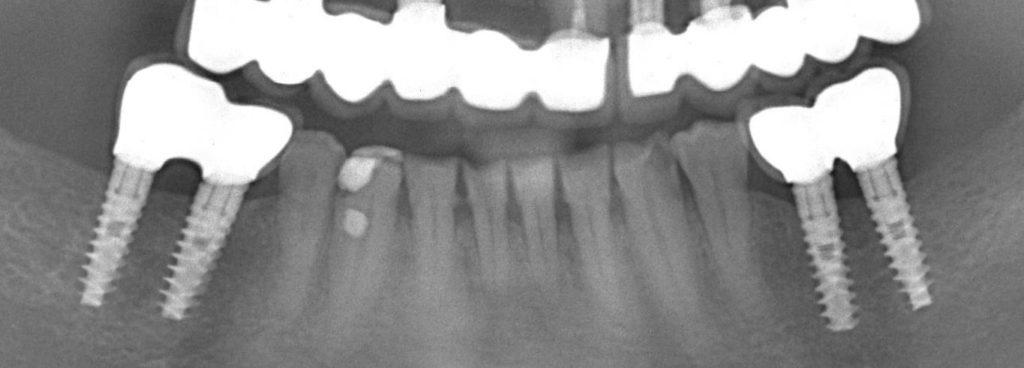 2-implant-dentar