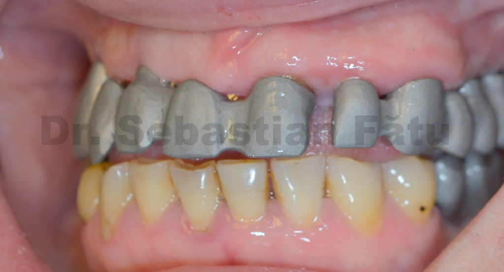 2-proba-metal-coroane-pe-implant