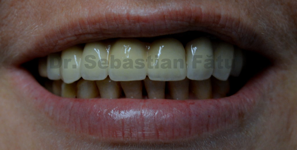 4-coroane-portelan-pe-implant-dentar
