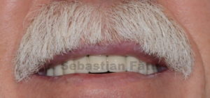 coroane dentare portelan semifizionomice 2