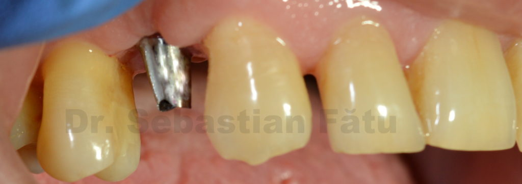 bont-implant-dentar