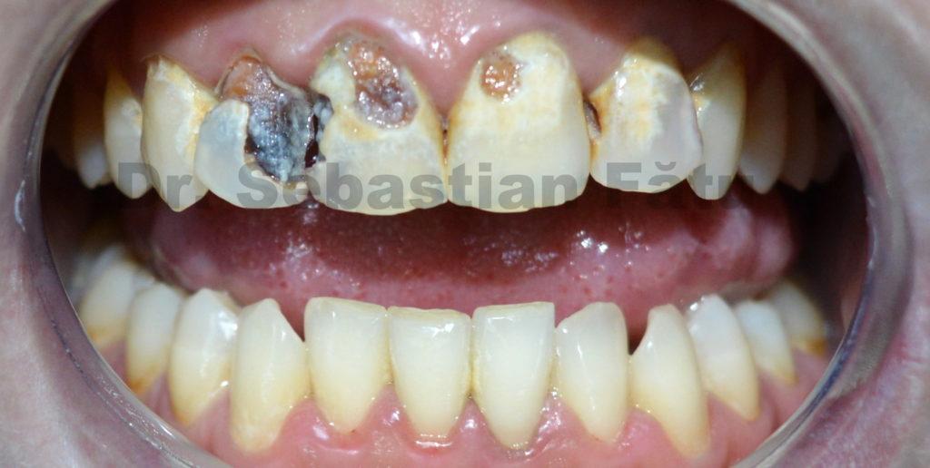 carii-dentare-dinti-frontali