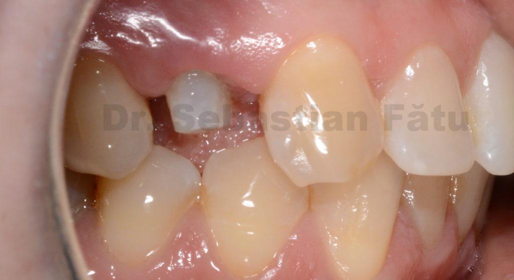 coroana-dentara-zirconiu-1