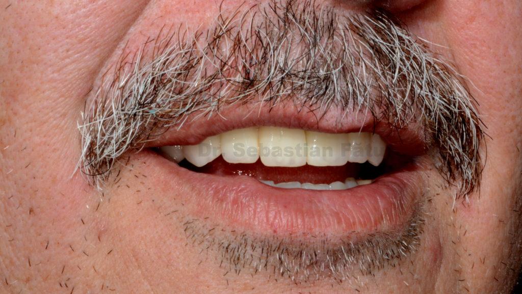 coroana-dentara-zirconiu