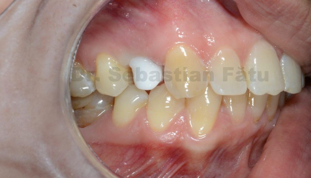 coroana-dentara-zirconiu-2