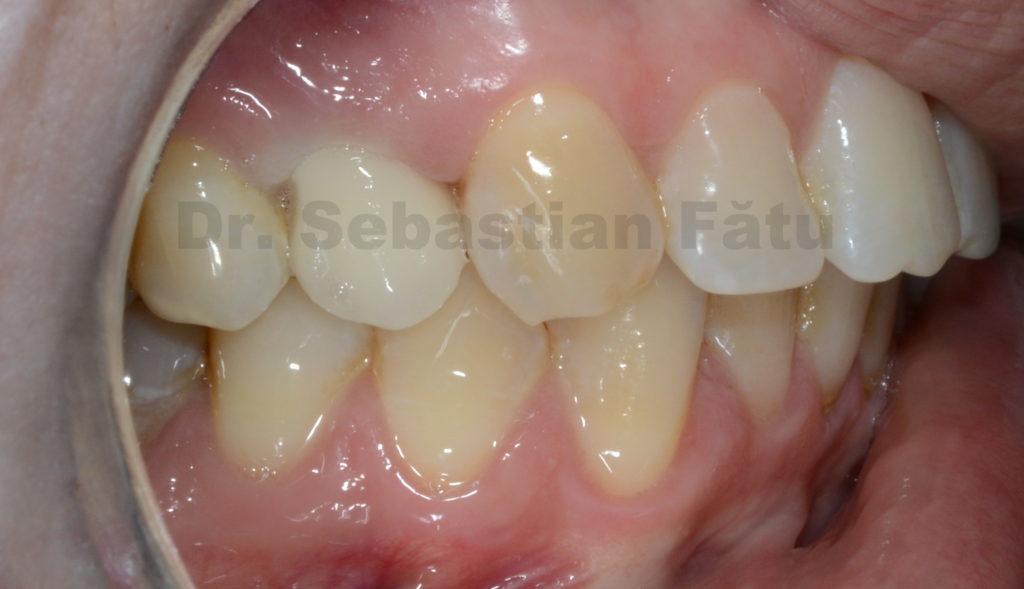 coroana-dentara-zirconiu-3