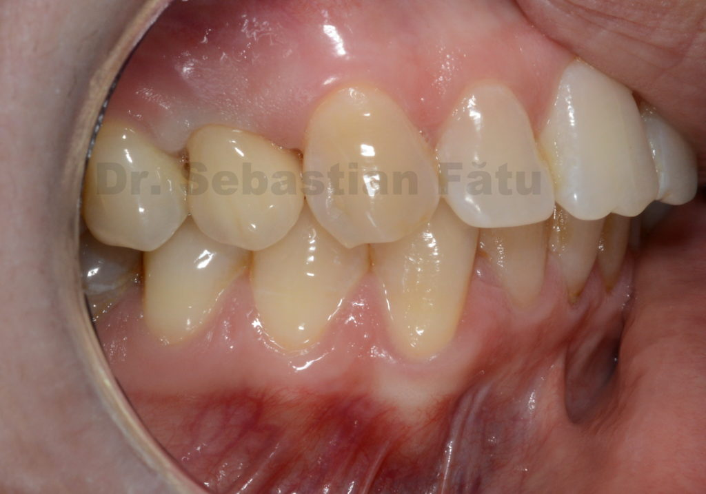 coroana-dentara-zirconiu-4