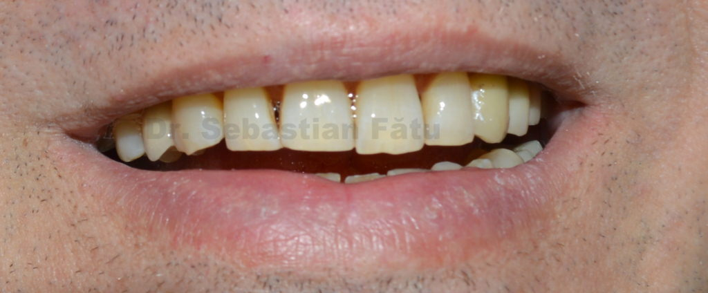 coroana-dentara-zirconiu-implant-dentar