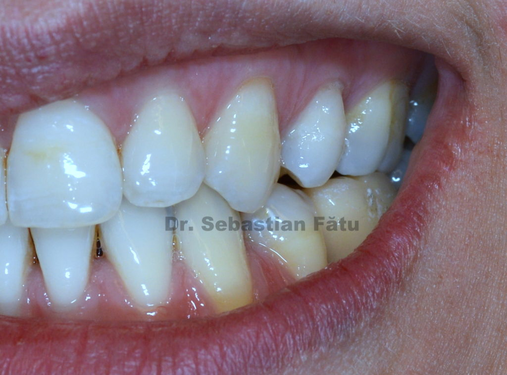 coroana-dentara-zirconiu-pe-implant-dentar