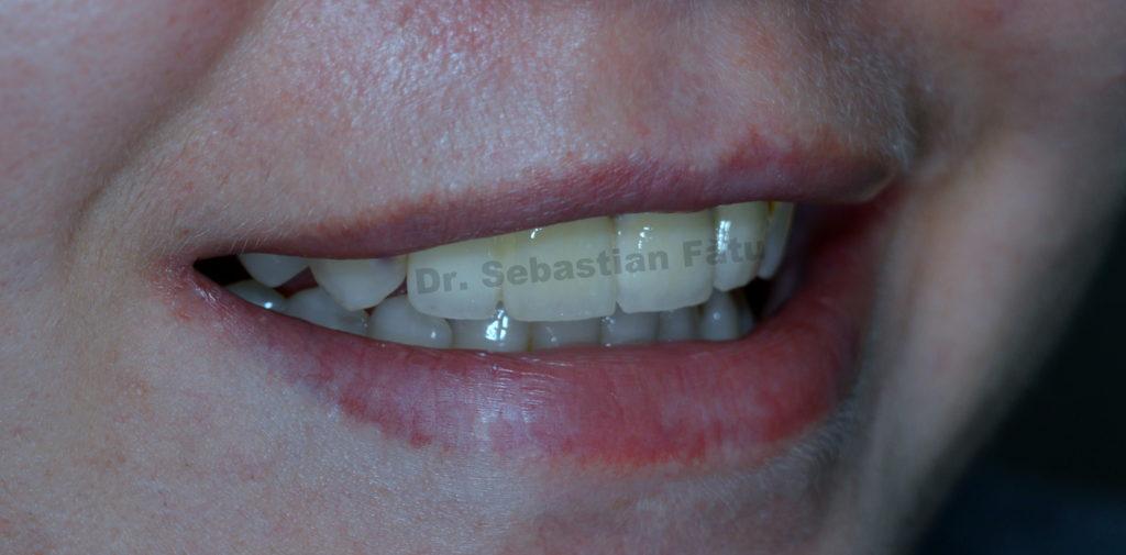 coroane-dentare-portelan