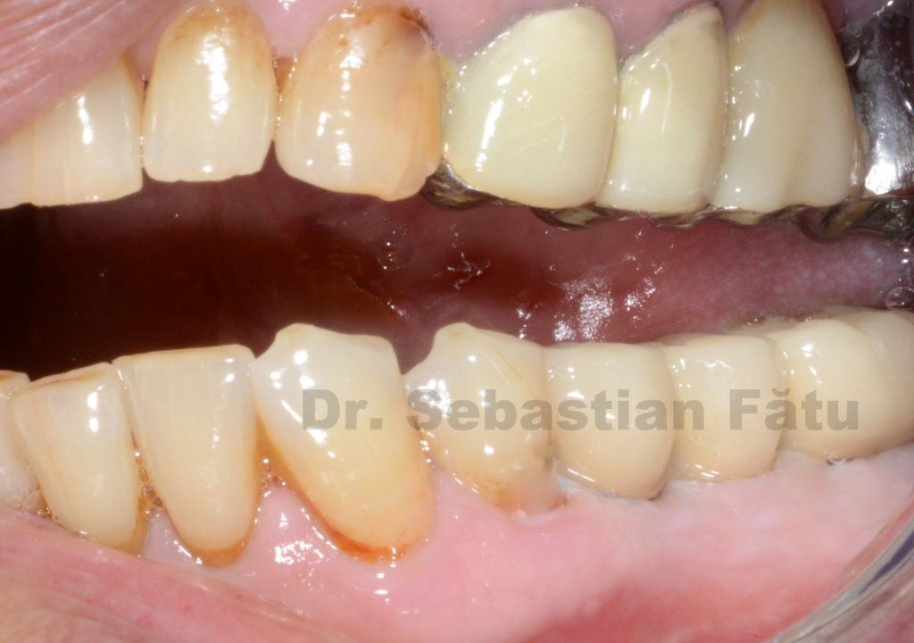 coroane-portelan-pe-implant-dentar