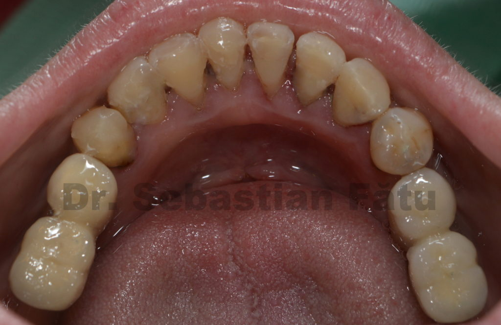 implant-dentar-mandibula