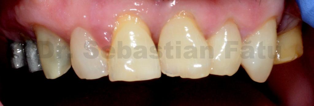 lucrare-coroane-dentare-zirconiu-2