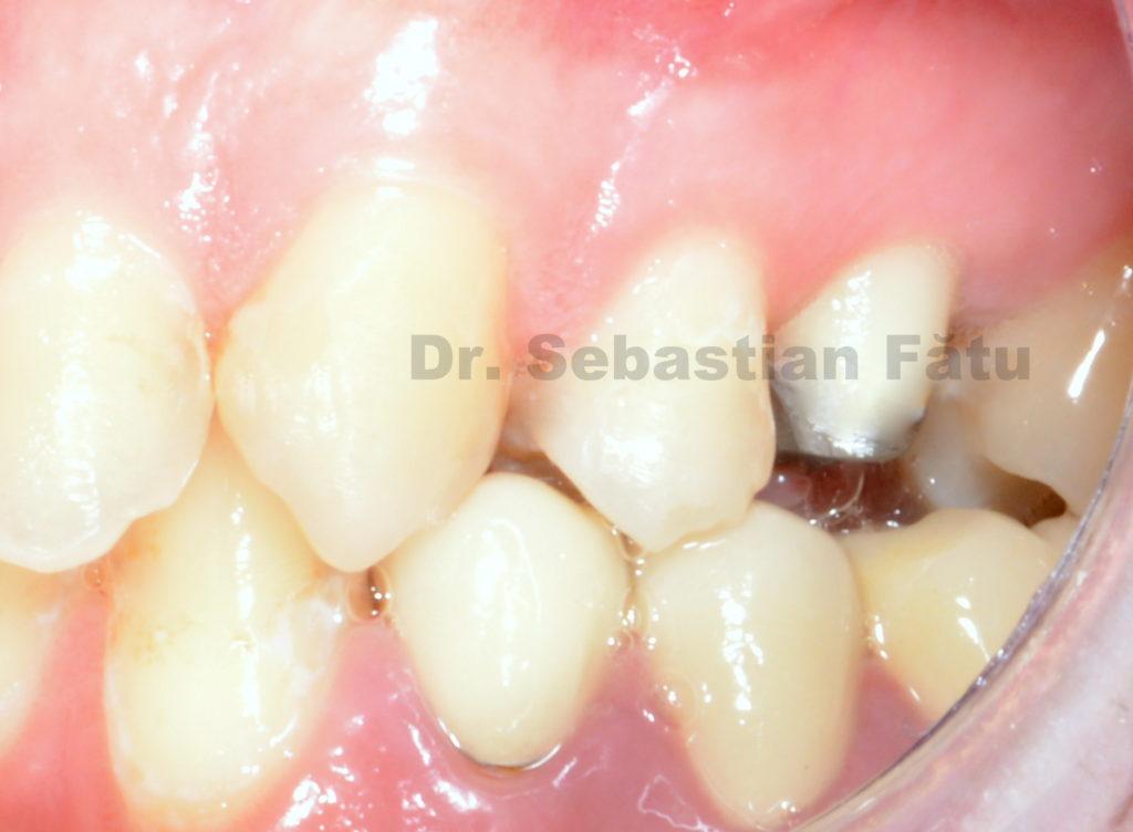 pivot-dentar