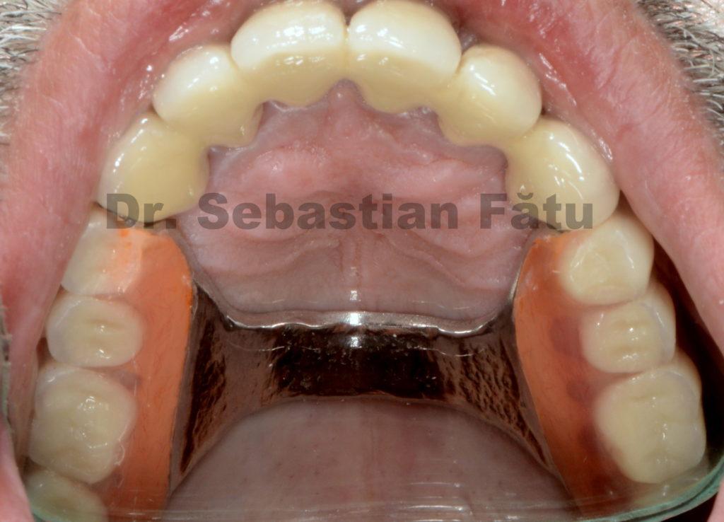 proteza-scheletata-maxilara-4