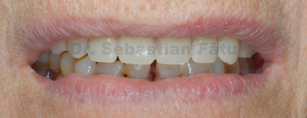 proteza-totala-dentara-cu-capse