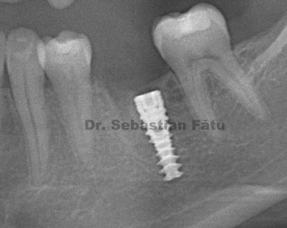 radiografie-implant-dentar