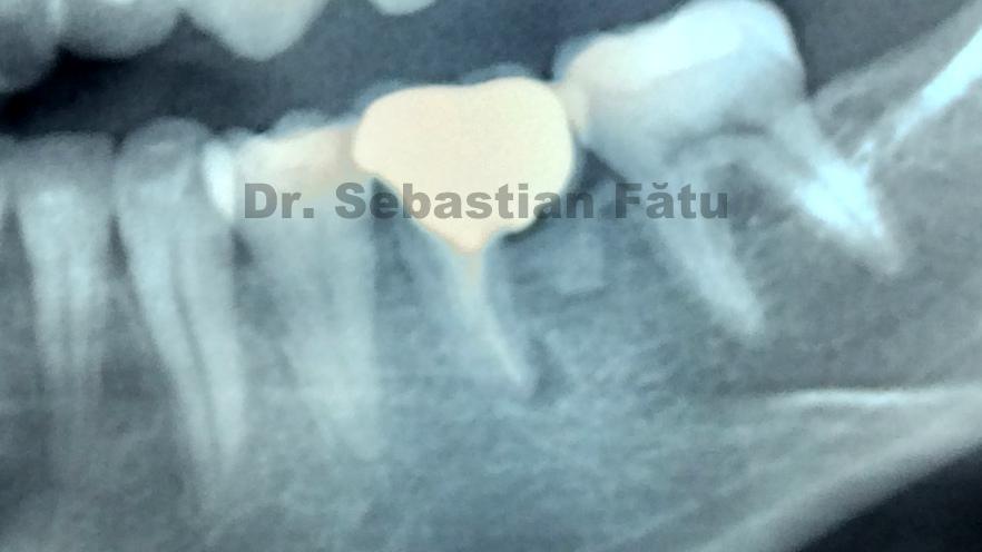 radiografie-molar-jpg