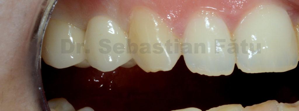 coroane-dentare-zirconiu