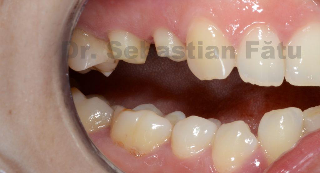 dinti-slefuiti-pentru-coroane-dentare